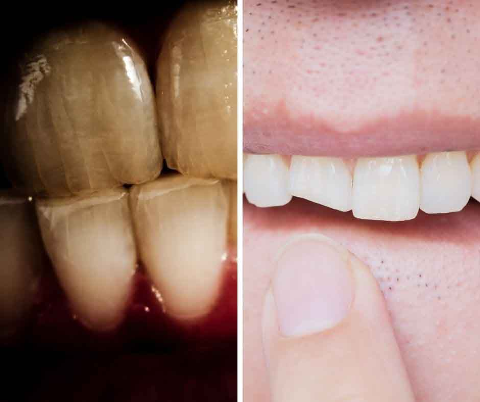 Solving problems of cracked and chipped teeth at Buderim Dental Care, Sunshine Coast