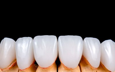Veneers Vs Crowns- Which One Is Better For You?